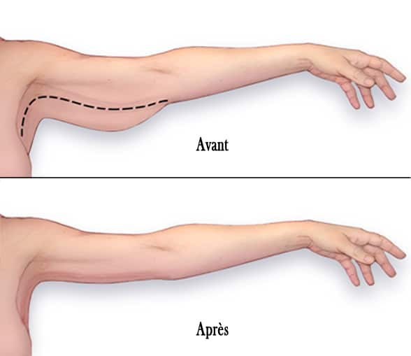 lifting bras tunisie : schéma montrat l'état des bras avant et après une brachioplastie.