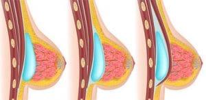 augmentation mammaire Tunisie :pose prothèse silicone
