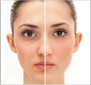 botox tunisie : améliorer l'aspect de votre visage